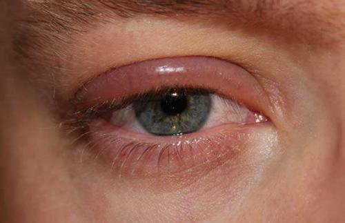 Аллергия вокруг глаз чем мазать. Общие сведения об аллергии на веках