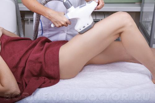 LPG массаж правила до и после процедуры. Эффект после LPG массажа