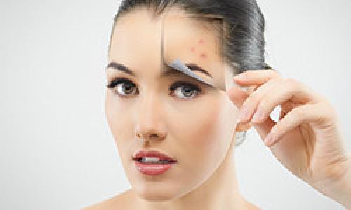 Чем убрать следы от прыщей на лице при беременности. Чистая кожа раз и навсегда! Как победить акне?