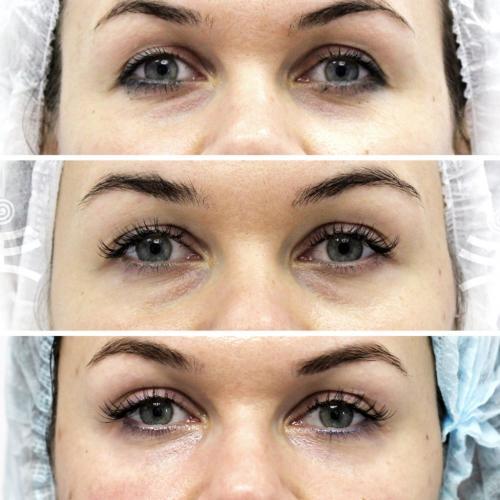 Разгладить морщины под глазами самый действенный метод. Все способы избавиться от морщин вокруг глаз
